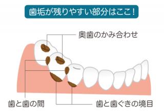歯垢から歯石へ